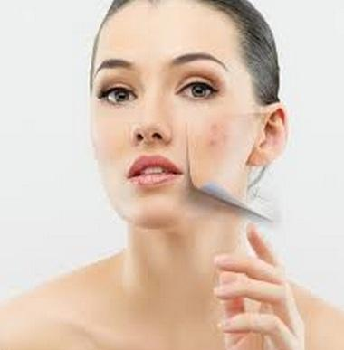 Manchas-en-la-piel-Como-eliminarlas-durante-el-embarazo-embarazo-hormonas-remedios-caseros-remedios-naturales-1